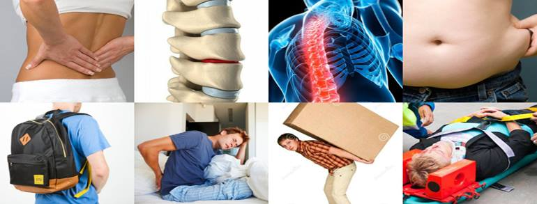 The Top 8 Causes of Low Back Pain